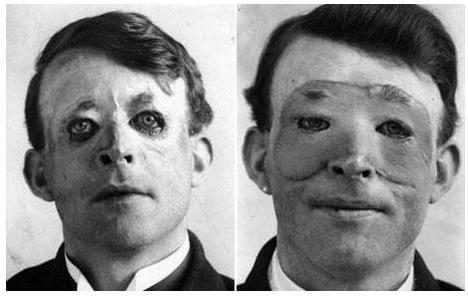pacient pionier in transplant piele